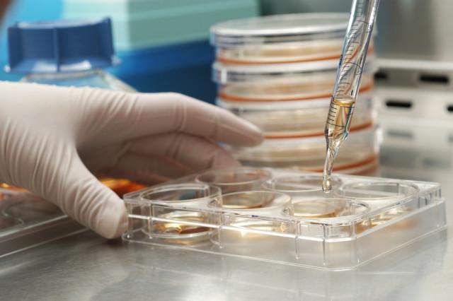 cellule staminali cura